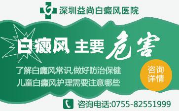 深圳白癜风的高危人群有哪些