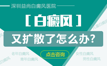 深圳白癜风治疗的偏方